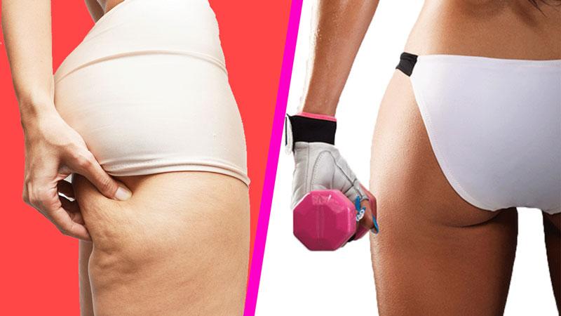 До и после антицеллюлитных тренировок
